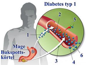 Diabetes typ 1 föranleder höga glukosvärden
