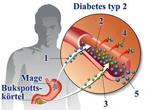 Diabetes typ 2 kan såväl som typ 1 medföra mögel och svamp