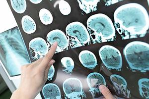 Hjärnan blir dement av mögelgift, mögel samt svamp